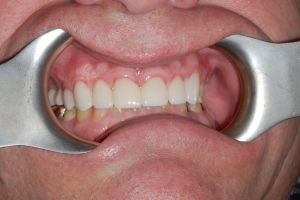Porcelain Smile Rehabilitation After