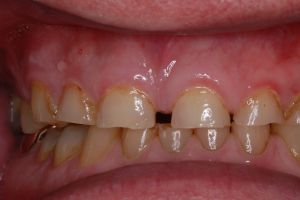 Before Porcelain Smile Rehabilitation