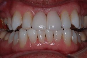 Implant Two Front Teeth After