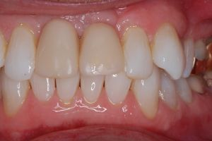 Implant Two Front Teeth Before