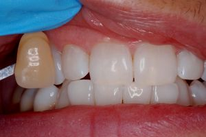 KoR Whitening to a healthy 0-3 mm range
