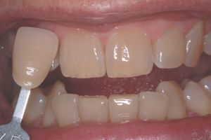KoR Whitening With Reduction