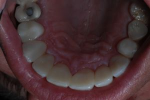 Porcelain Rehabilitation after